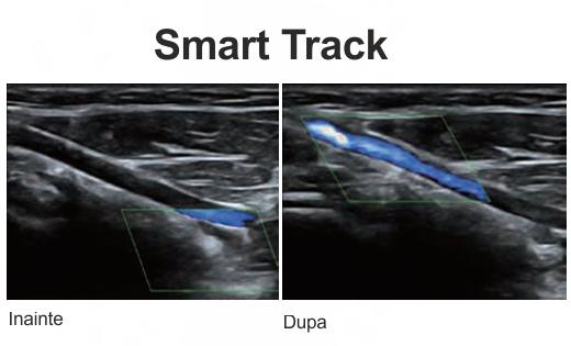 Smart Track web
